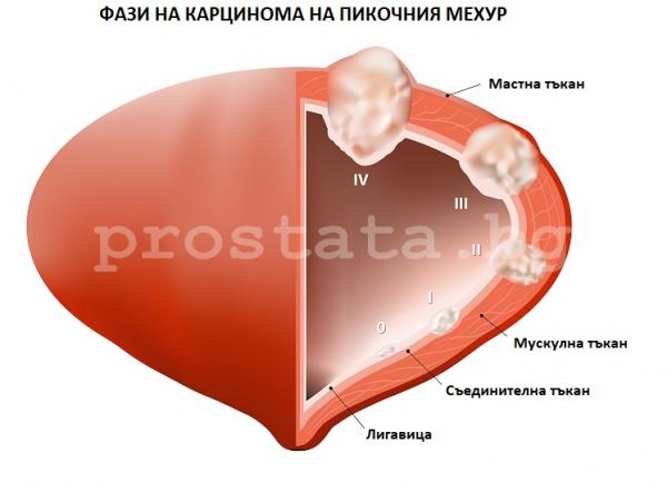 Фази на карцинома на пикочния мехур